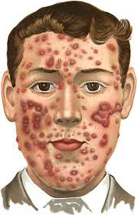 acne-plr-articles